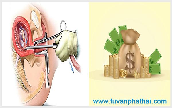 Có nhiều yếu tố ảnh hưởng đến mức phí hút thai