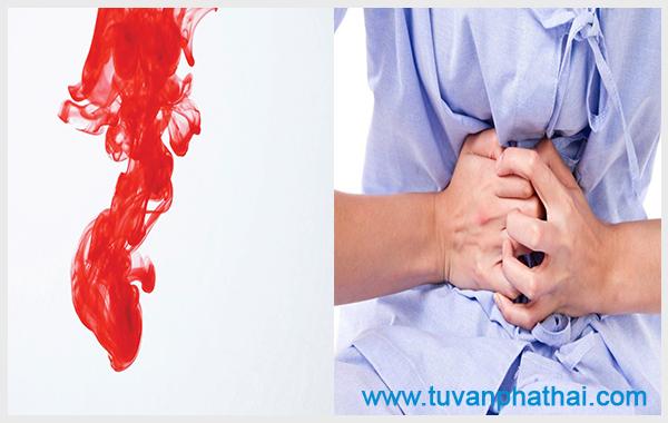 Chảy máu sau khi hút thai kéo dài nhiều nhất khoảng 15 ngày